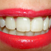 teeth_smile_170sq