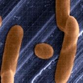 anios bacteria